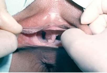 double vagina