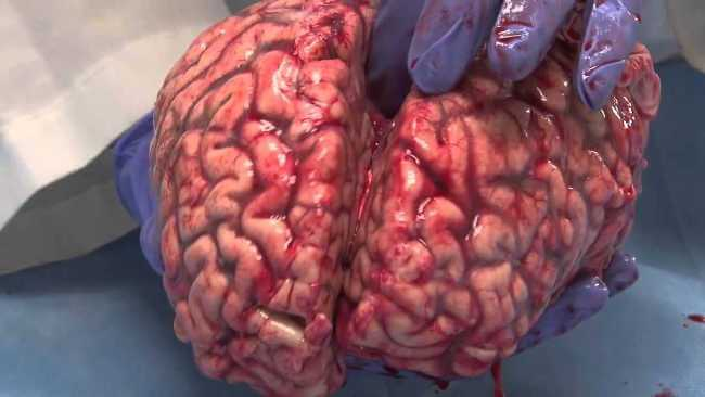 Freshly-Removed-Human-Brain (1)